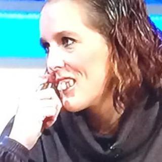 Dişleri sebebiyle alay konusu olan kadının değişimi