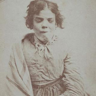 1800'lerin akıl hastanesinden tüyler ürperten fotoğraflar
