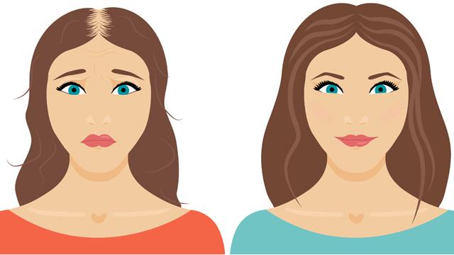 Her zaman yaptığımız ve saç dökülmesine neden olan 10 şey