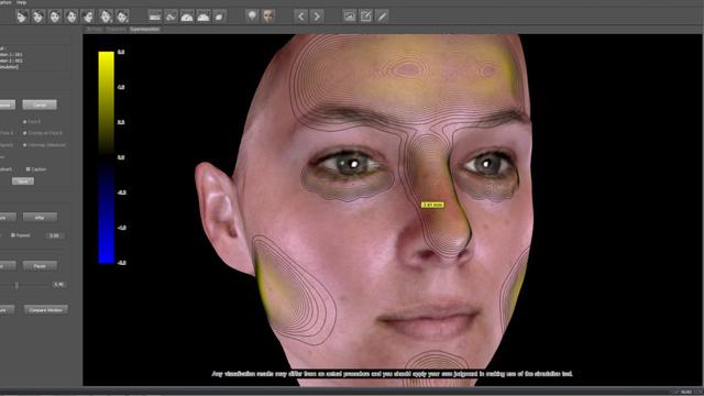3D simülasyon ile estetik cerrahide sürprize son!