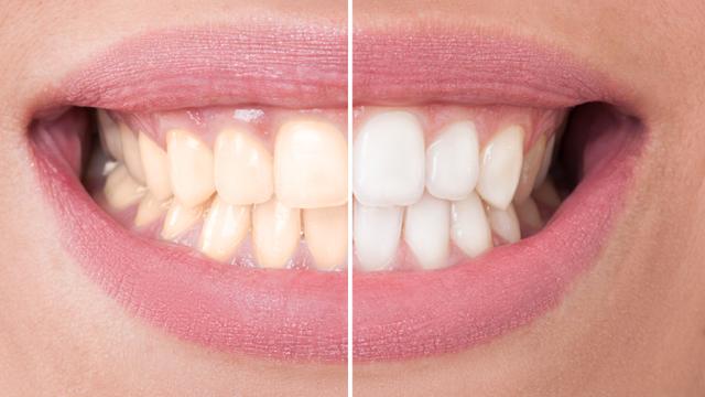 Evde kolaylıkla yapabileceğiniz macunla bembeyaz dişlere kavuşun