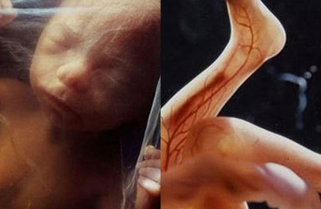 Anne karnındaki bebeğin mucize görüntüleri