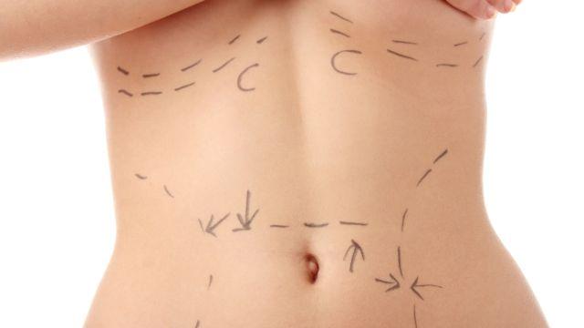 Hangi liposuction tekniği size daha uygun? Lazer mi Vazer mi?