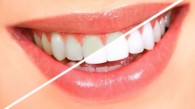 Dişlerinizin renginden şikayetçiyseniz bu öneriler tam size göre…