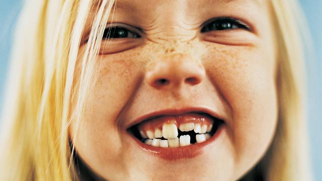 Ağızdan nefes alma diş yapısıyla yüz şeklini bozuyor