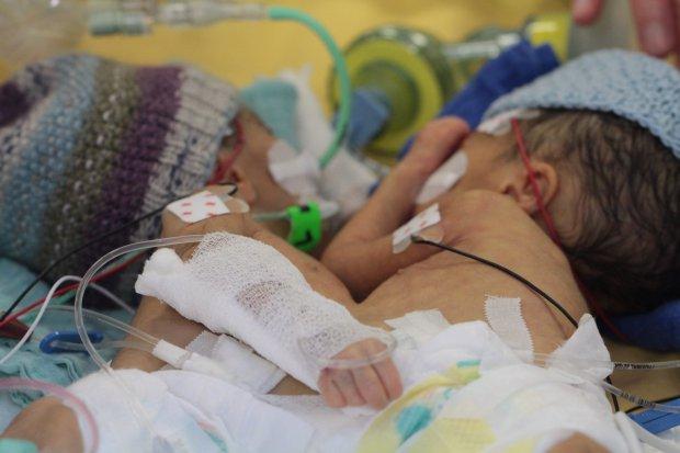 En küçük yapışık ikizler başarıyla ayrıldı