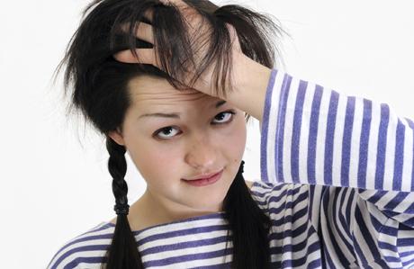 Kepekli saçlardan kurtulmanın 5 yolu