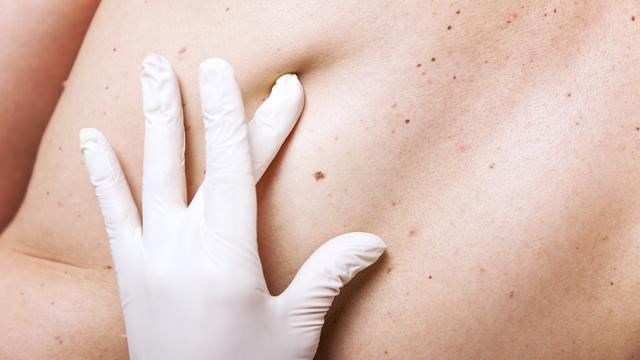 Vücudumuzdaki gizli tehlike: Benler
