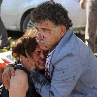 Ankara'daki patlamaya ünlüler sessiz kalmadı