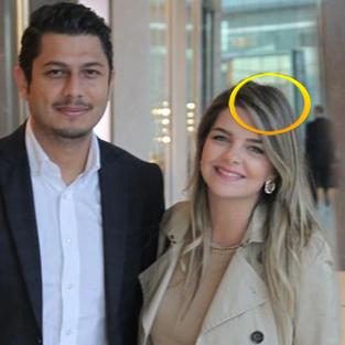 Pelin Karahan'a hamilelik yaradı