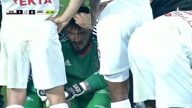 Beşiktaş'ın kalecisi Boyko kanlar içinde kaldı!