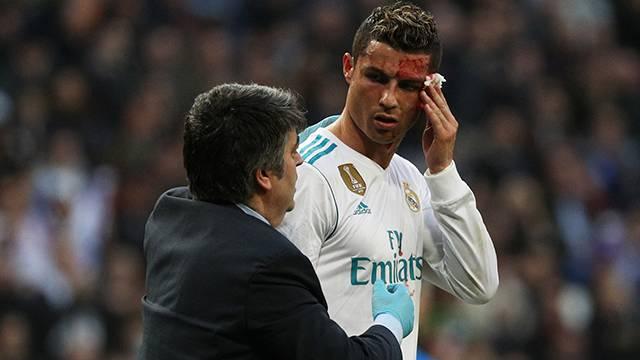 Ronaldo kanlar içinde kaldı!
