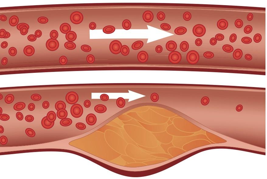 6. Kolesterolü düşürür