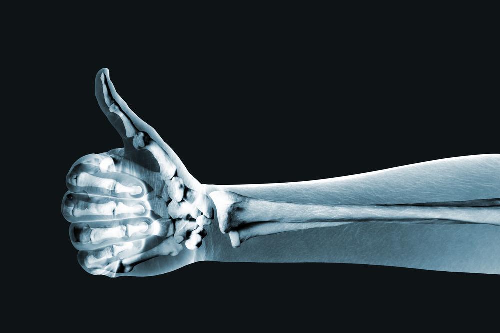 8. Kemik sağlığını destekler