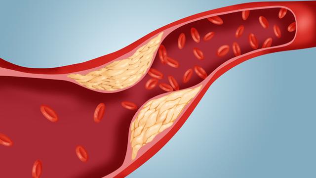 3. Kolesterol