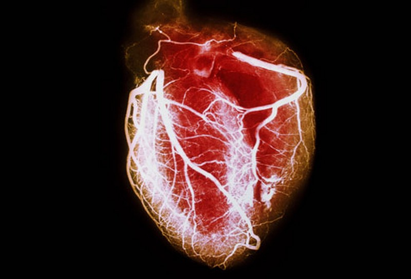 4. Kalp hastalıkları
